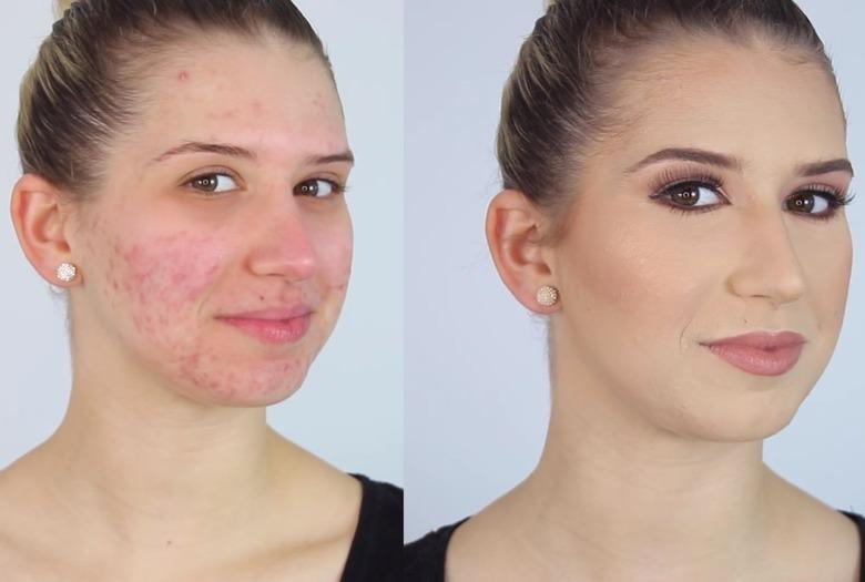 make-up-bei-akne.jpg